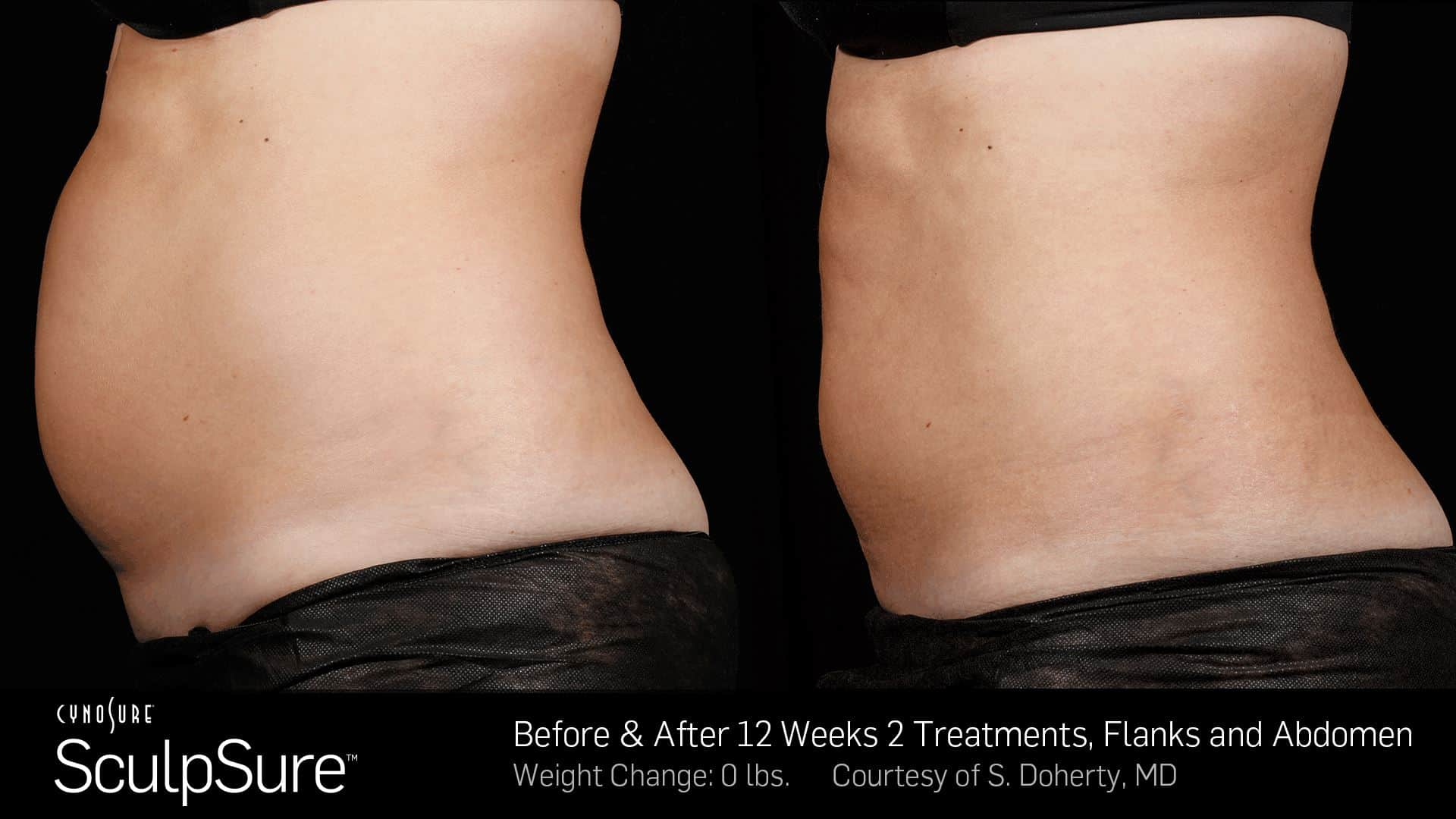 Sculpsure before & after